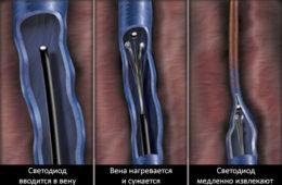 Эндовазальная лазерная облитерация (коагуляция)