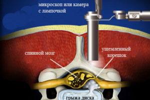Микрохирургическая дискэктомия