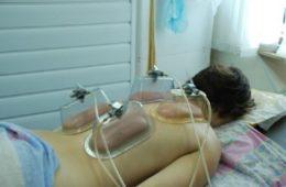 Вакуум-терапия