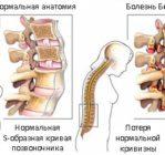 Изменения при болезни Бехтерова
