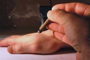Прижигание полынными сигарами