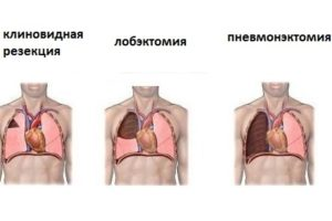 Виды хирургического лечения туберкулеза