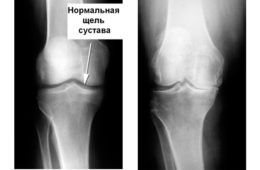 Изменения на рентгене при артрозе