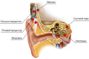 Кохлеарная имплантация