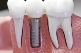 Несъемное протезирование зубов