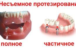 Полное и частичное несъемное протезирование