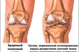 Поражение коленного сустава при остеоартрозе