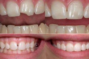До и после косметической реставрации