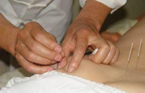 Иглорефлексотерапия - универсальная процедура