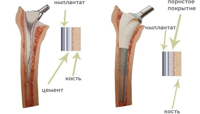 Протезы коленного и тазобедренного сустава