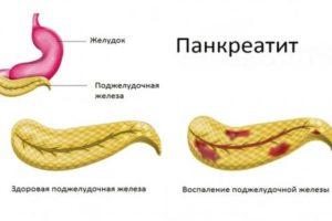 Воспаление поджелудочной железы - Панкреатит
