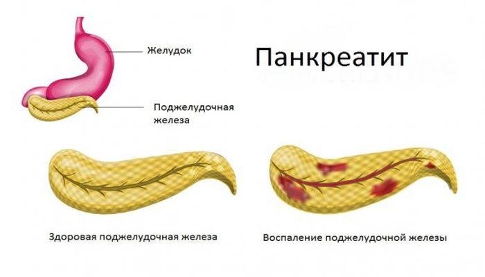 Как чем лечить панкреатит поджелудочной железы